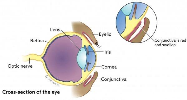 eye graphic for conjunctivitis